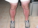 Alistair Lattimore's Sunburnt Legs, Stage 2